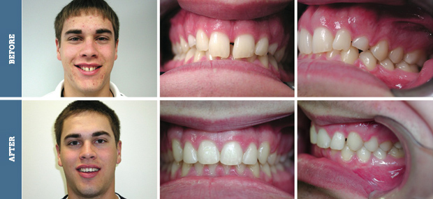 Before and after braces adults